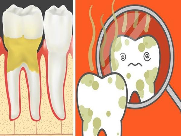 Cẩn thận mắc bệnh viêm nướu răng nếu gặp phải 5 dấu hiệu sau - Ảnh 2