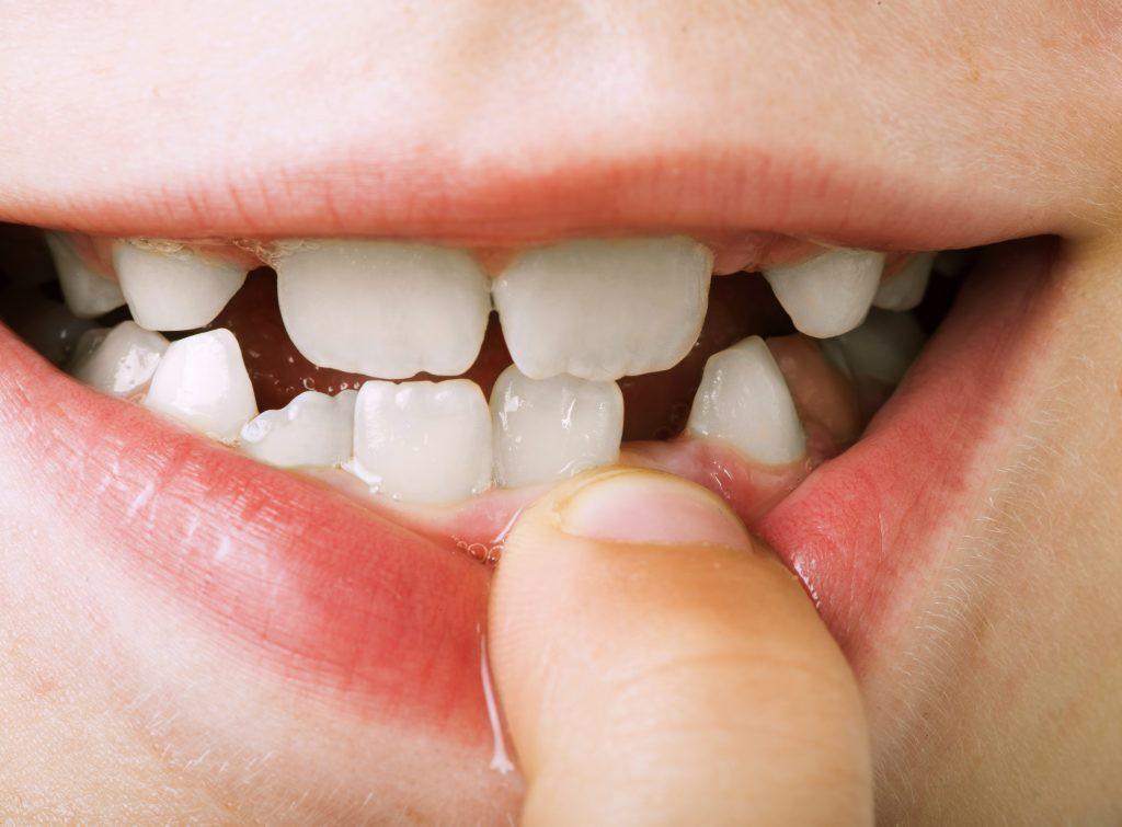 Cẩn thận mắc bệnh viêm nướu răng nếu gặp phải 5 dấu hiệu sau - Ảnh 4