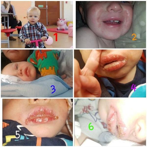 Trẻ gặp nguy hiểm tính mạng vì nụ hôn của người lớn - Ảnh 1