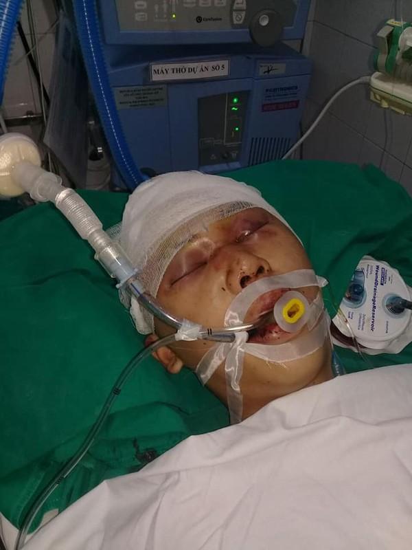 Mẹ đau đớn chứng kiến cảnh con trai nằm bất tỉnh trên vũng máu vì bị đánh ngay trước cổng nhà - Ảnh 1
