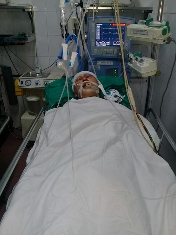 Mẹ đau đớn chứng kiến cảnh con trai nằm bất tỉnh trên vũng máu vì bị đánh ngay trước cổng nhà - Ảnh 2
