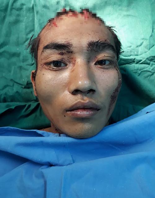 Chém vợ, sát hại con gái rồi tự sát vì ảo giác ma túy - Ảnh 1