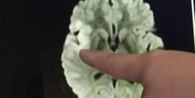 Người phụ nữ Trung Quốc bị tụ máu não vì nhìn chằm chằm vào điện thoại 20 giờ liên tục - Ảnh 2