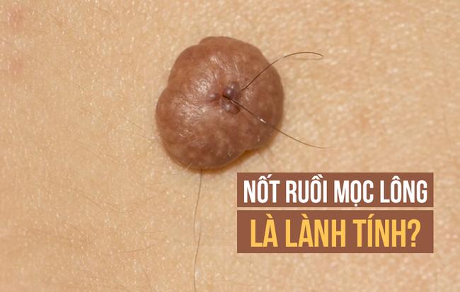 Lông mọc ở nốt ruồi không gây ung thư và có thể cắt bỏ được: Sự thật có phải vậy không? - Ảnh 1