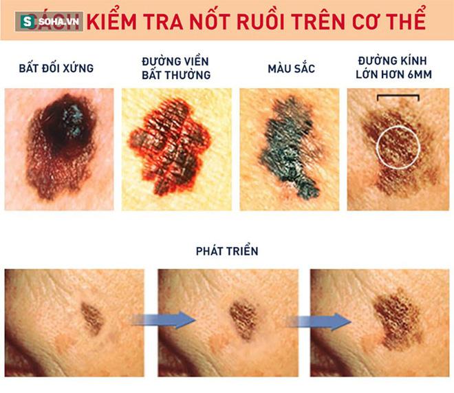 Lông mọc ở nốt ruồi không gây ung thư và có thể cắt bỏ được: Sự thật có phải vậy không? - Ảnh 2