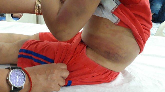 Chân dung người mẹ 28 tuổi cùng bạn tình đánh đập, tra tấn con trai 6 tuổi bầm dập cả người ở Tây Ninh - Ảnh 2