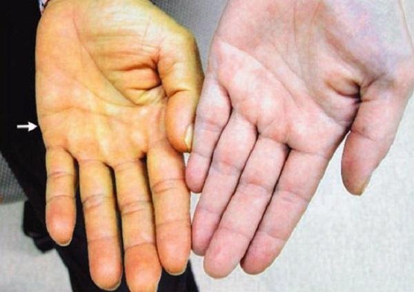6 dấu hiệu cảnh báo ung thư gan đang tới rất gần bạn - Ảnh 2
