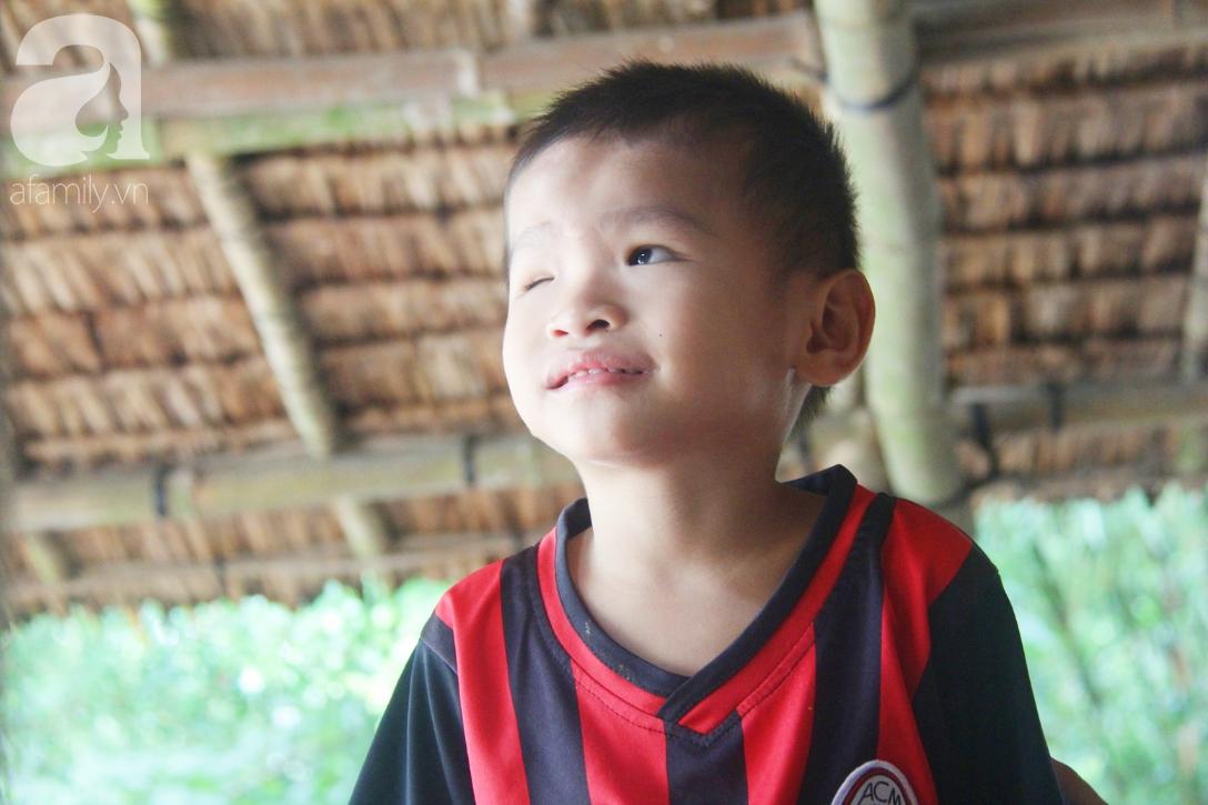 Bé trai 4 tuổi bị mù một bên mắt ngây ngô hỏi mẹ: 'Lỡ con không thấy đường, bố mẹ có bỏ con không?' - Ảnh 1