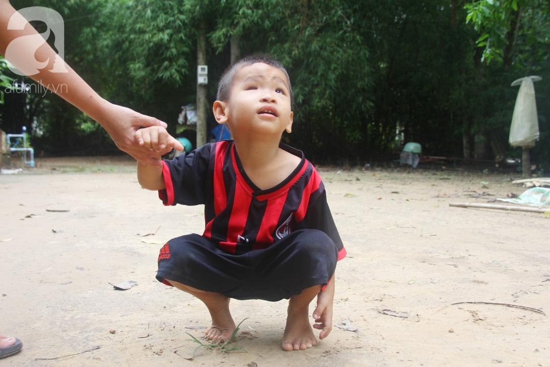 Bé trai 4 tuổi bị mù một bên mắt ngây ngô hỏi mẹ: 'Lỡ con không thấy đường, bố mẹ có bỏ con không?' - Ảnh 15
