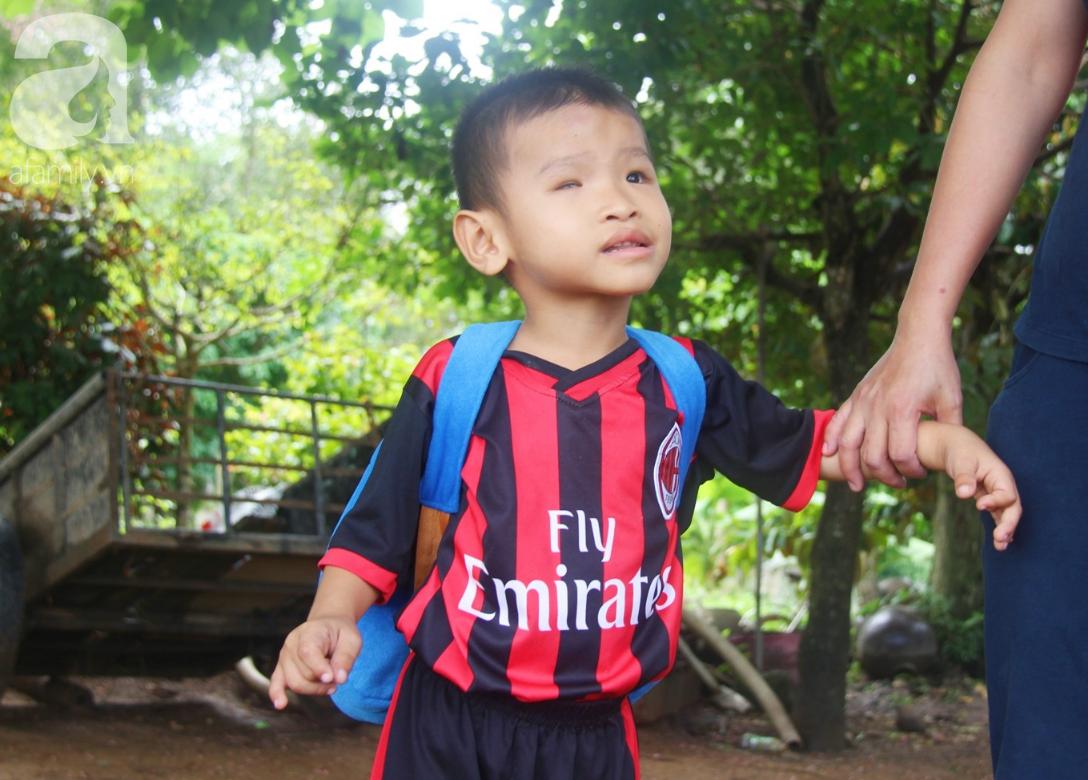 Bé trai 4 tuổi bị mù một bên mắt ngây ngô hỏi mẹ: 'Lỡ con không thấy đường, bố mẹ có bỏ con không?' - Ảnh 16