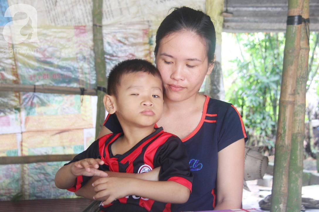 Bé trai 4 tuổi bị mù một bên mắt ngây ngô hỏi mẹ: 'Lỡ con không thấy đường, bố mẹ có bỏ con không?' - Ảnh 2