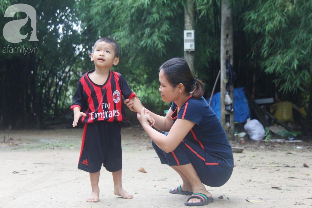 Bé trai 4 tuổi bị mù một bên mắt ngây ngô hỏi mẹ: 'Lỡ con không thấy đường, bố mẹ có bỏ con không?' - Ảnh 4