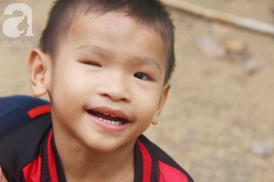 Bé trai 4 tuổi bị mù một bên mắt ngây ngô hỏi mẹ: 'Lỡ con không thấy đường, bố mẹ có bỏ con không?' - Ảnh 8