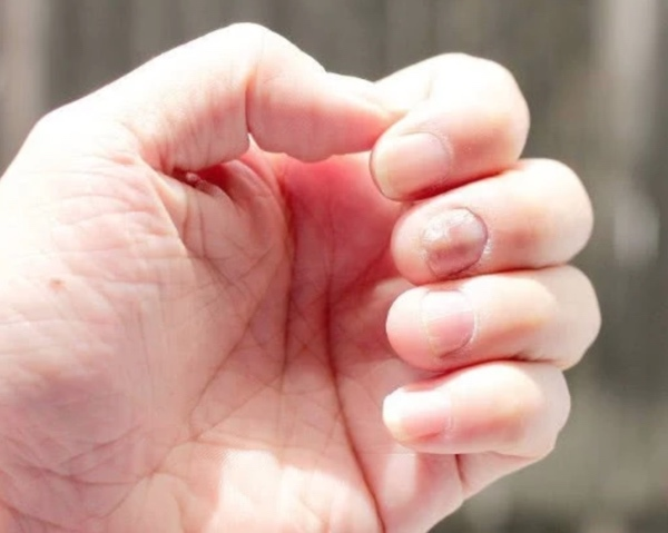 5 triệu chứng lặp đi lặp lại chứng tỏ gan đang tích tụ quá nhiều độc tố - Ảnh 1