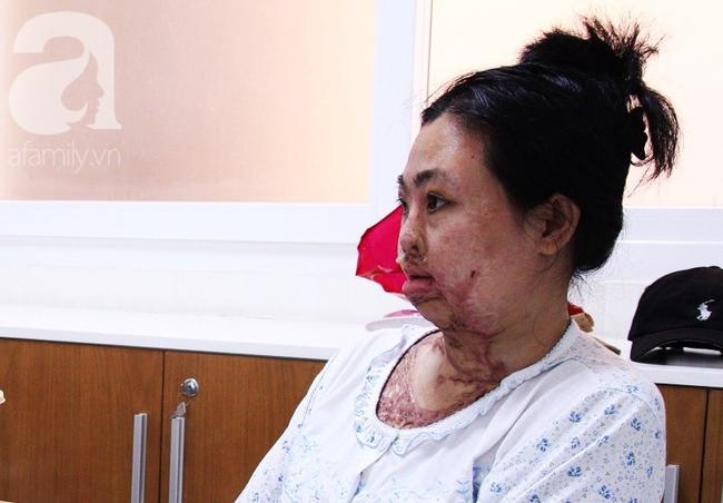 Vừa chia tay chồng, người phụ nữ bị kẻ lạ tạt axit, đau đớn khi con trai 8 tuổi sợ hãi, không nhận ra mẹ - Ảnh 12