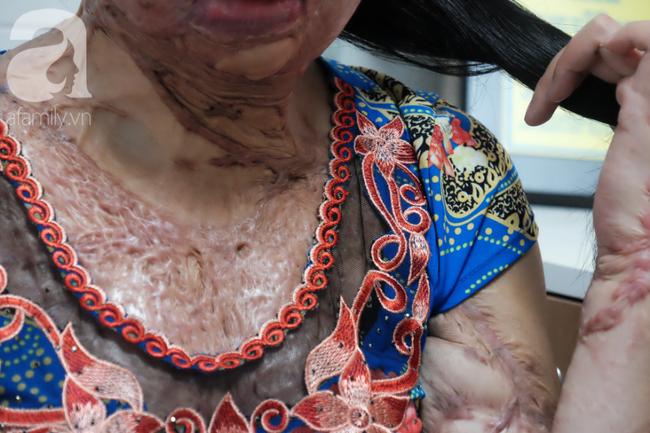 Vừa chia tay chồng, người phụ nữ bị kẻ lạ tạt axit, đau đớn khi con trai 8 tuổi sợ hãi, không nhận ra mẹ - Ảnh 4