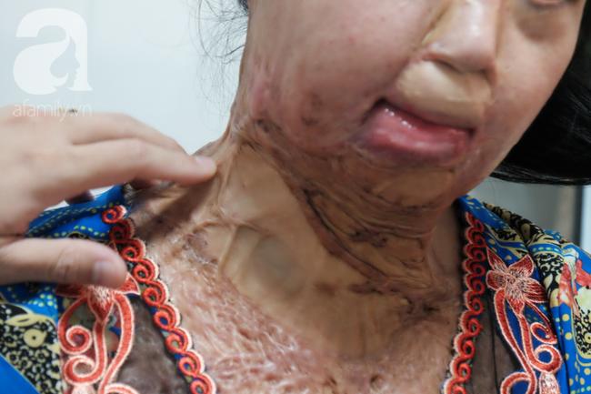 Vừa chia tay chồng, người phụ nữ bị kẻ lạ tạt axit, đau đớn khi con trai 8 tuổi sợ hãi, không nhận ra mẹ - Ảnh 5