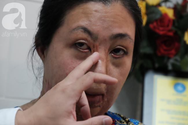 Vừa chia tay chồng, người phụ nữ bị kẻ lạ tạt axit, đau đớn khi con trai 8 tuổi sợ hãi, không nhận ra mẹ - Ảnh 8