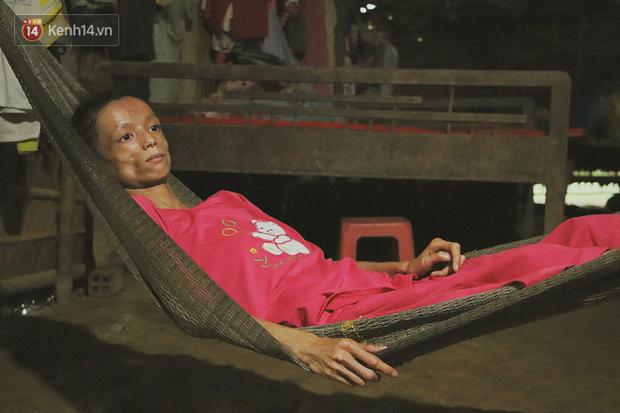 Xót cảnh thiếu nữ 16 tuổi chỉ còn da bọc xương, 3 năm trời phải tháo khớp tay chân để giành sự sống từ căn bệnh quái ác - Ảnh 15