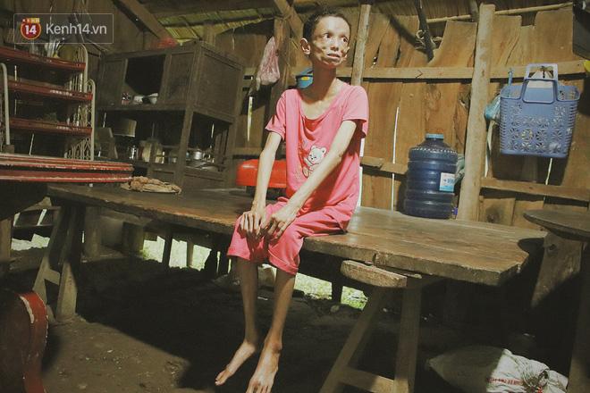 Xót cảnh thiếu nữ 16 tuổi chỉ còn da bọc xương, 3 năm trời phải tháo khớp tay chân để giành sự sống từ căn bệnh quái ác - Ảnh 1