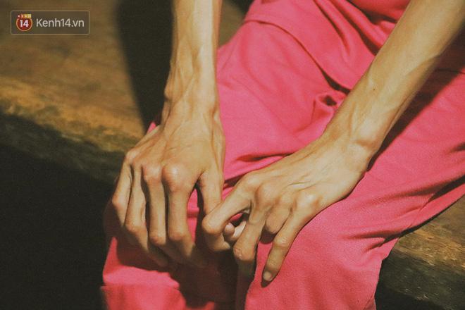 Xót cảnh thiếu nữ 16 tuổi chỉ còn da bọc xương, 3 năm trời phải tháo khớp tay chân để giành sự sống từ căn bệnh quái ác - Ảnh 2
