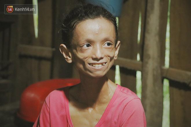 Xót cảnh thiếu nữ 16 tuổi chỉ còn da bọc xương, 3 năm trời phải tháo khớp tay chân để giành sự sống từ căn bệnh quái ác - Ảnh 5
