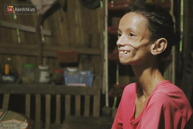 Xót cảnh thiếu nữ 16 tuổi chỉ còn da bọc xương, 3 năm trời phải tháo khớp tay chân để giành sự sống từ căn bệnh quái ác - Ảnh 6