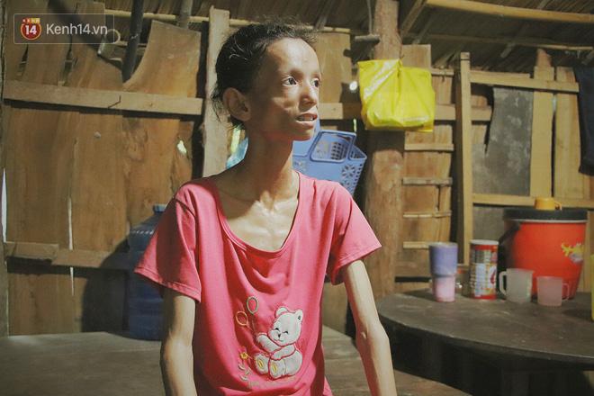 Xót cảnh thiếu nữ 16 tuổi chỉ còn da bọc xương, 3 năm trời phải tháo khớp tay chân để giành sự sống từ căn bệnh quái ác - Ảnh 10