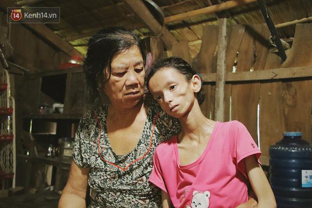 Xót cảnh thiếu nữ 16 tuổi chỉ còn da bọc xương, 3 năm trời phải tháo khớp tay chân để giành sự sống từ căn bệnh quái ác - Ảnh 20