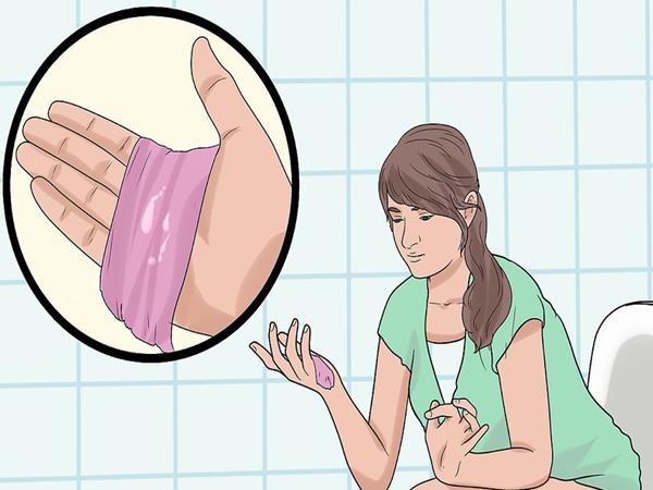 Vùng kín có mùi khó ngửi đang ngầm cảnh báo một số vấn đề sức khỏe mà bạn có nguy cơ gặp phải - Ảnh 2