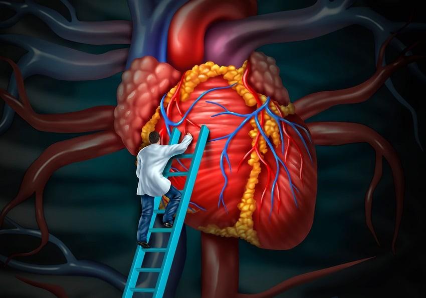 Đây là những căn bệnh về tim thường gặp nhất mà bạn không nên chủ quan bỏ qua - Ảnh 4