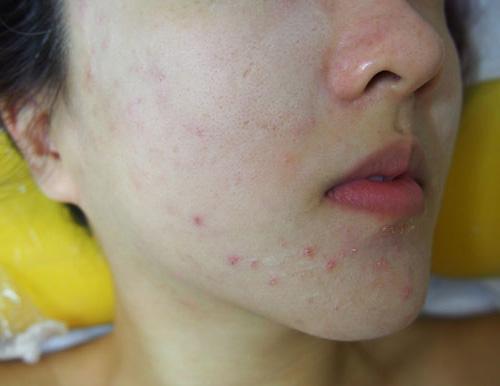 Sai lầm tai hại khi dùng khiến Vitamin E trở thành 'độc dược': Càng thoa da mặt càng xấu - Ảnh 2