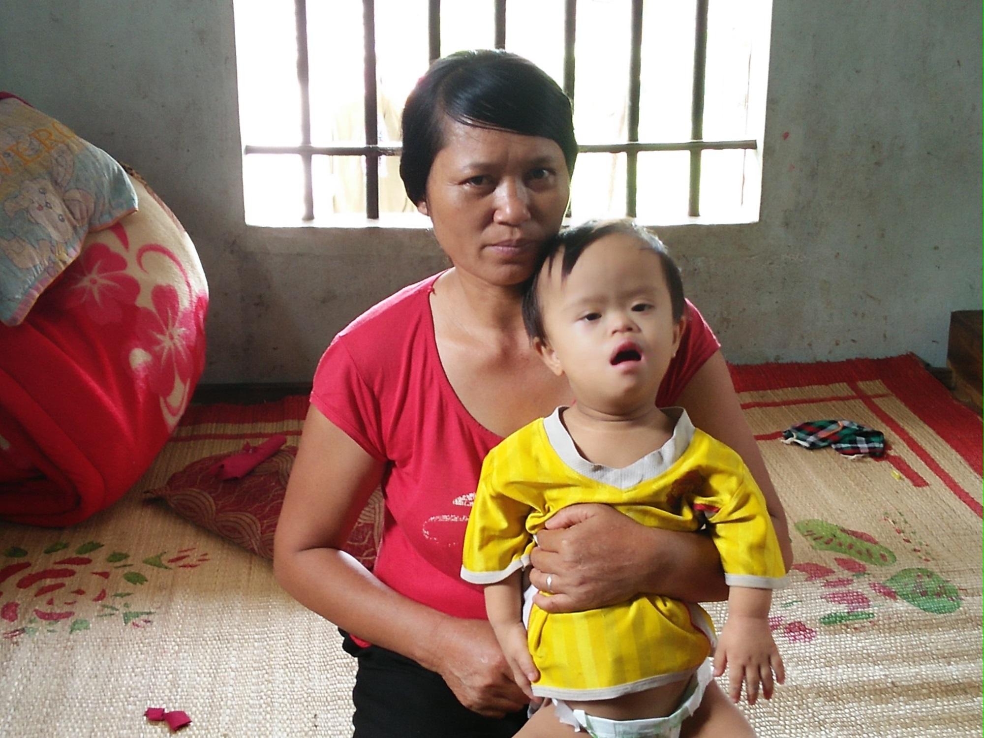Chuyện đời bất hạnh của gia đình 'người lùn': 'Tôi phải làm sao để cứu con mình đây?' - Ảnh 2