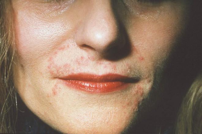 Cứ tưởng là bị mụn thông thường nhưng đây lại là những căn bệnh nghiêm trọng về da - Ảnh 3