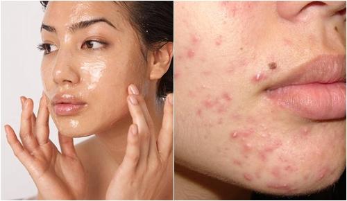 Đây là 6 nguyên liệu tự nhiên có tác dụng dưỡng da đẹp không tì vết nhanh nhất, là phụ nữ nhất định phải biết - Ảnh 1