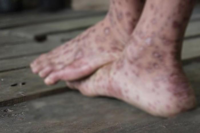 Mưa gió liên tục, cẩn thận đề phòng ngay những căn bệnh viêm nhiễm ở chân - Ảnh 3