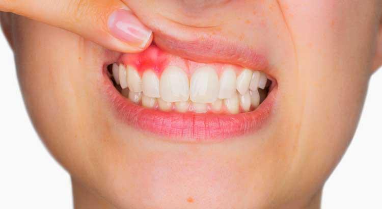 Những nguyên nhân cần lưu ý khi xuất hiện tình trạng chảy máu nướu khi đánh răng - Ảnh 1