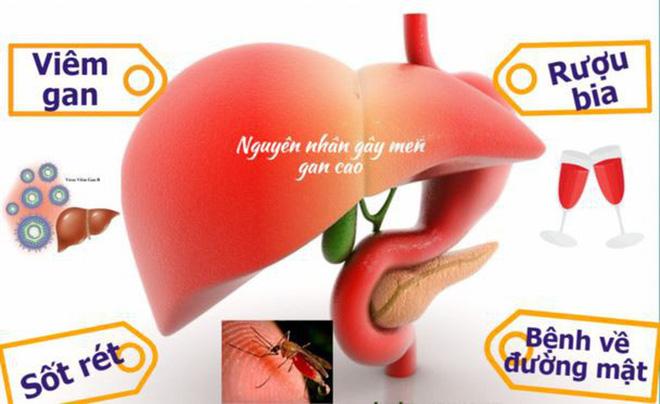 Cách thải độc tốt nhất là ngừng đầu độc gan, BS khuyến cáo những việc cần dừng ngay - Ảnh 2