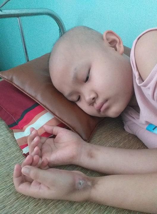 Lời khẩn cầu của bé gái 9 tuổi phải cắt bỏ chân vì căn bệnh hiểm nghèo: 'Cháu muốn giữ chân còn lại để tiếp tục đến trường' - Ảnh 3