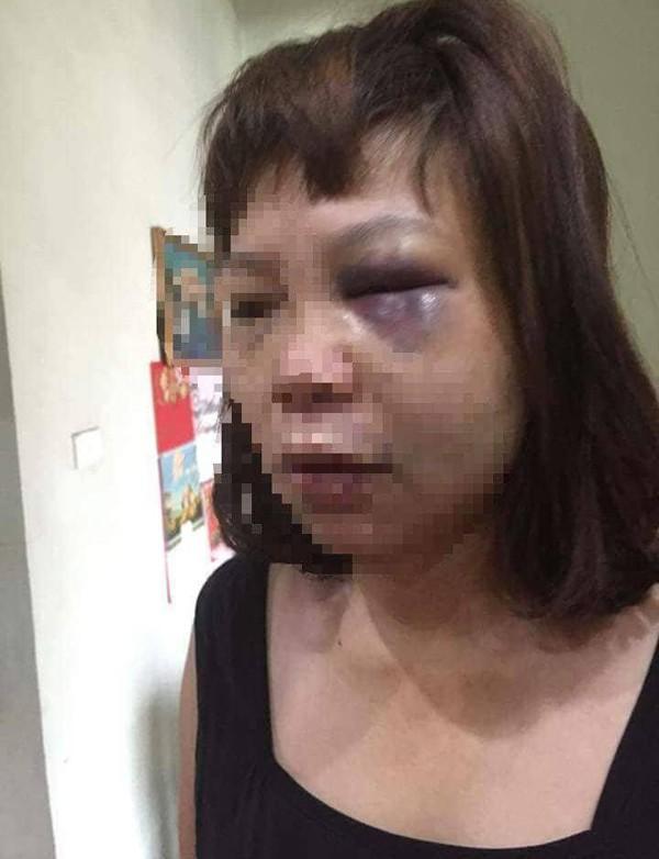Phẫn nộ: Vợ bị chồng dùng dao cắt tóc và gân chân vì ghen tuông - Ảnh 1
