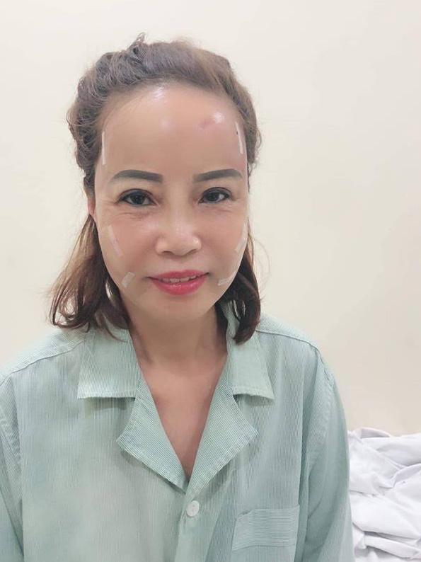 Bất chấp dao kéo mổ xẻ đau đớn, cô dâu 61 tuổi: 'Dù giảm thọ, tôi vẫn muốn xứng ngoại hình với chồng' - Ảnh 1