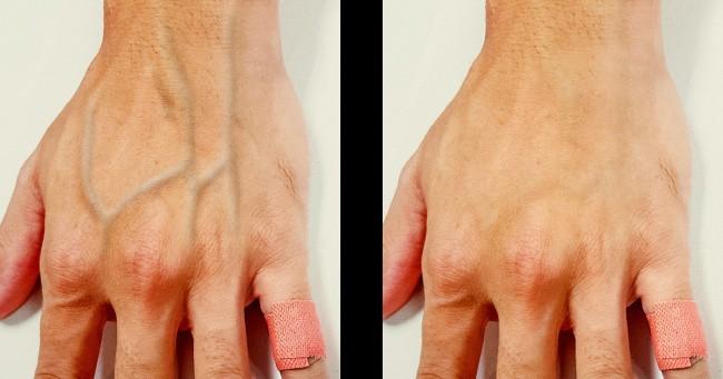 Một số người có làn da nổi gân guốc nhiều hơn hẳn phần còn lại và đây là lý do - Ảnh 1
