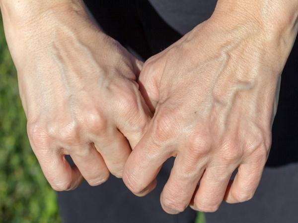 Một số người có làn da nổi gân guốc nhiều hơn hẳn phần còn lại và đây là lý do - Ảnh 2