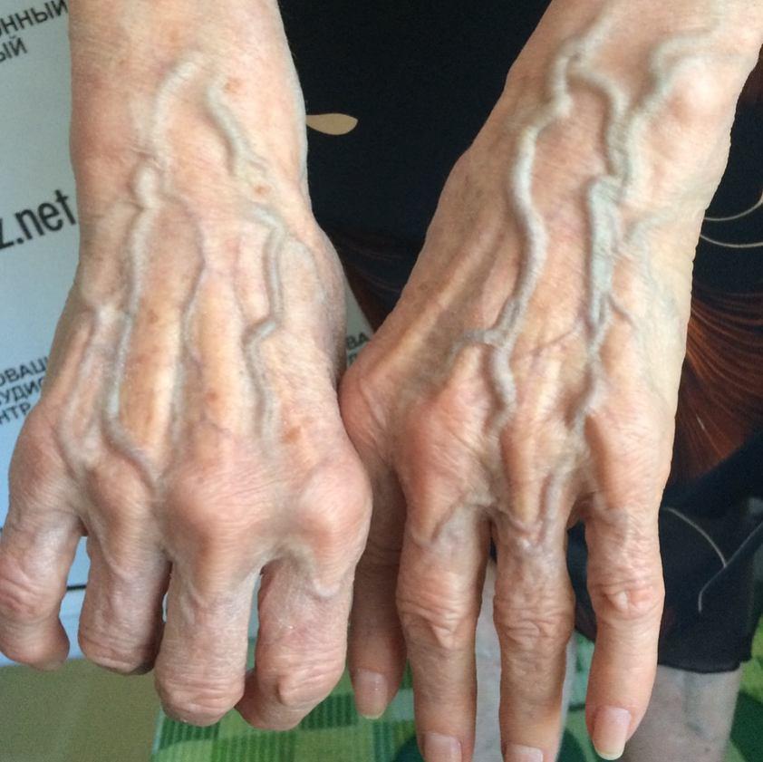Một số người có làn da nổi gân guốc nhiều hơn hẳn phần còn lại và đây là lý do - Ảnh 5