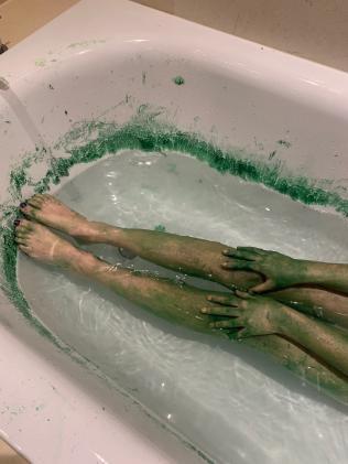 Nghe tiếng con hét trong nhà tắm, mẹ chạy vào và sửng sốt khi thấy con như 'người ngoài hành tinh' - Ảnh 2
