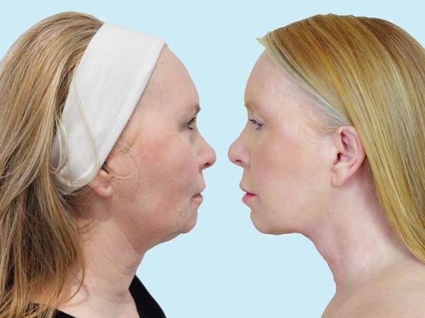 Người phụ nữ 55 tuổi đánh tan nọng cằm, nếp nhăn không cần dao kéo - Ảnh 1