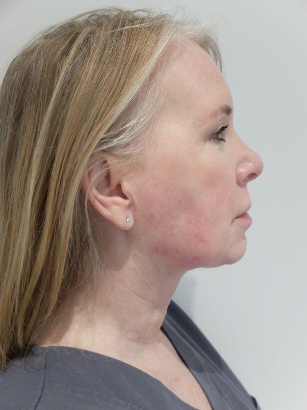 Người phụ nữ 55 tuổi đánh tan nọng cằm, nếp nhăn không cần dao kéo - Ảnh 2