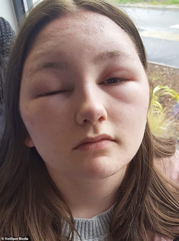 Cô gái 18 tuổi suýt mù vì quên làm một việc trước khi nhuộm tóc, chị em nên lưu ý - Ảnh 2