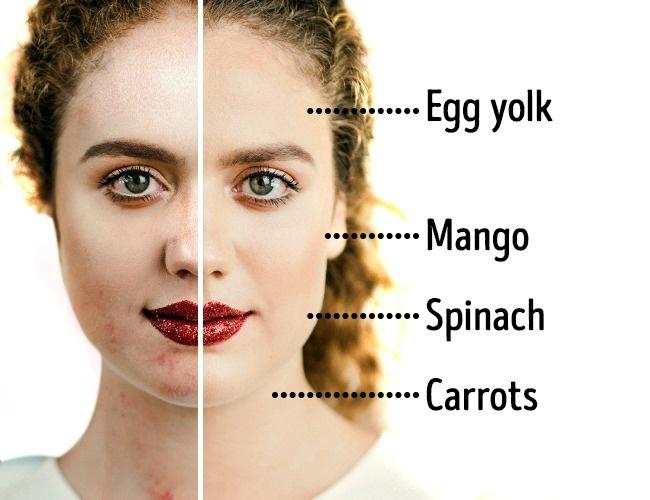 Bác sĩ da liễu chia sẻ 6 bí quyết ăn kiêng xử lý mọi vấn đề giúp làn da trắng hồng, không tì vết - Ảnh 2