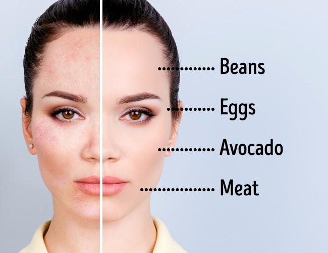 Bác sĩ da liễu chia sẻ 6 bí quyết ăn kiêng xử lý mọi vấn đề giúp làn da trắng hồng, không tì vết - Ảnh 4